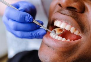 Modern Dental Services (Veneers-Badili Meno Ya Rangi Kuwa Meupe Peeee)!!!